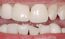 compare-crowns-before