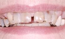 compare-smile-before