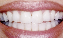 compare-veneers-after
