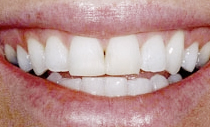 compare-veneers-before